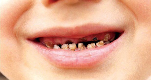 صورة رؤية الاسنان المسوسة في المنام , وصفة لتبيض الاسنان