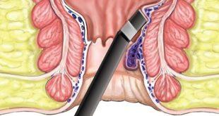 البواسير الداخلية وعلاجها , اعرف طرق الوقايه من البواسير الداخليه