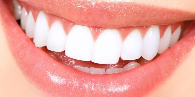 صورة تفسير حلم تركيب الاسنان لابن سيرين , هل الحلم بتركيب الاسنان خير ام شر