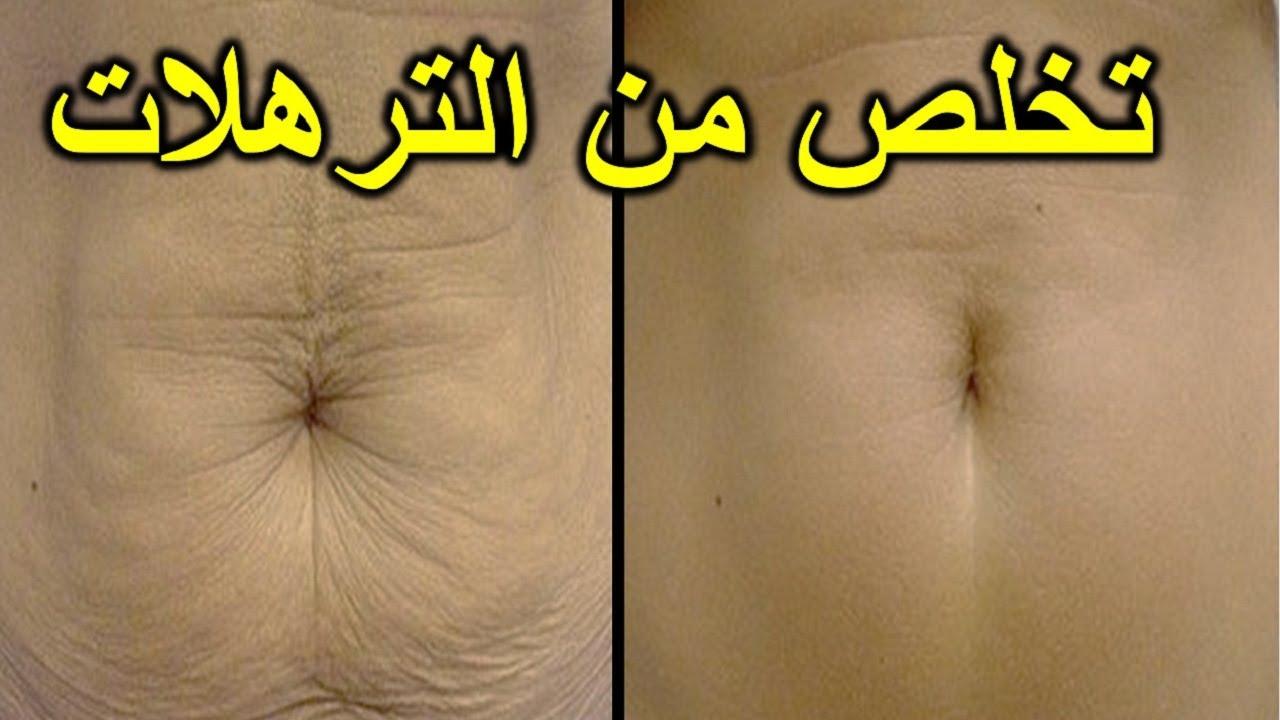 صورة تخلص من الكرش وترهلات البطن في 7 ايام , وصفات فعاله جدا لشد الترهلات