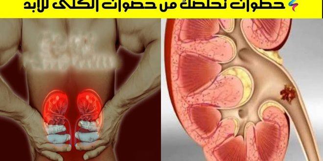 صورة علاج طبيعي لحصى الكلى , ازاي ممكن نستخدم الطب البديل لعلاج الكلي
