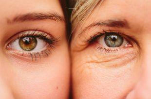 صور علاج التجاعيد حول العين , ازاله التجاعيد والتخلص منها نهائيا