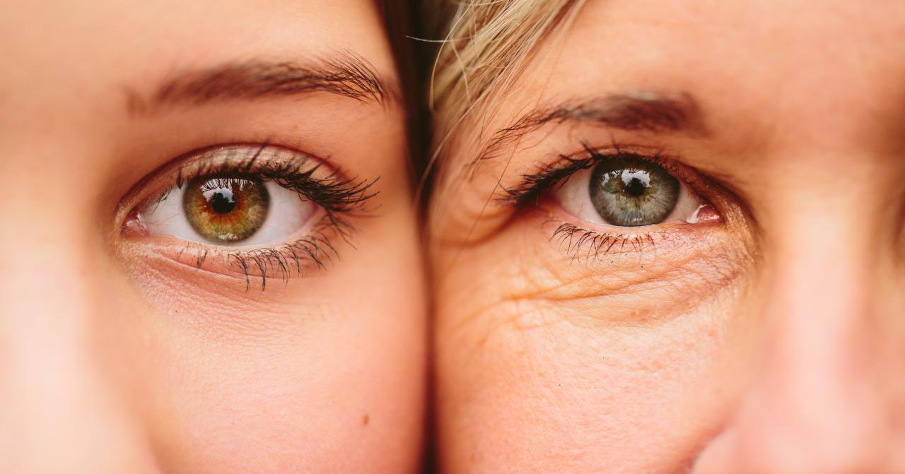 صورة علاج التجاعيد حول العين , ازاله التجاعيد والتخلص منها نهائيا