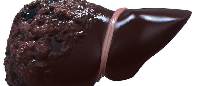 صورة اعراض سرطان الكبد الاخيرة , كيف تعرف انك في المراحل الاخيرة من سرطان الكبد
