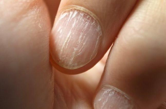صورة الفطريات في الاظافر , ازاي تعرفي انك مصابه بمشاكل الفطريات في الاظافر