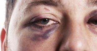 صورة علاج الكدمات الزرقاء تحت العين , في ايام بسيطة عالج اي تغير تحت العين