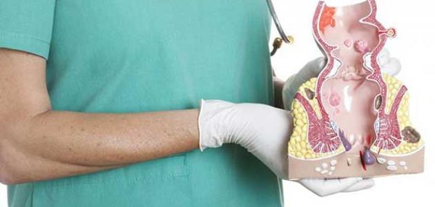 صورة علاج البواسير بالليزر , لا للبواسير مع تقنية الليزر