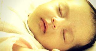 صورة بوصفير عند الاطفال , الصفراء عند حديثي الولادة