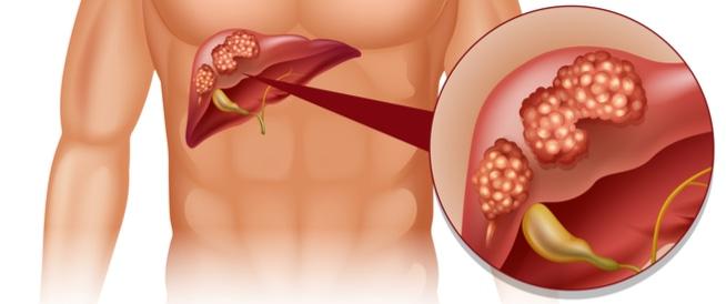 صورة علاج سرطان الكبد بالاعشاب , سرطان الكبد و علاجه بالاعشاب