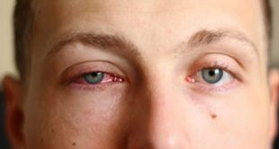 صورة كيف اتخلص من احمرار العين , من اول مرة هيضيع الاحمرار
