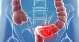 صورة اعراض التهاب القولون , وصف شامل للاعراض كلها