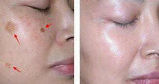 صورة ازالة البقع من الوجه , الزبادى اسرع حل وفي يوم واحد