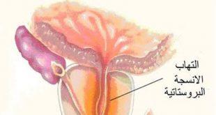 صورة علاج التهاب البروستاتا المزمن , علاجها نهائيا