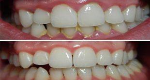 طريقة تنظيف الاسنان من الجير في المنزل , وصفة لتخلص من جير الاسنان