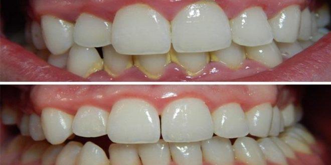 صورة طريقة تنظيف الاسنان من الجير في المنزل , وصفة لتخلص من جير الاسنان