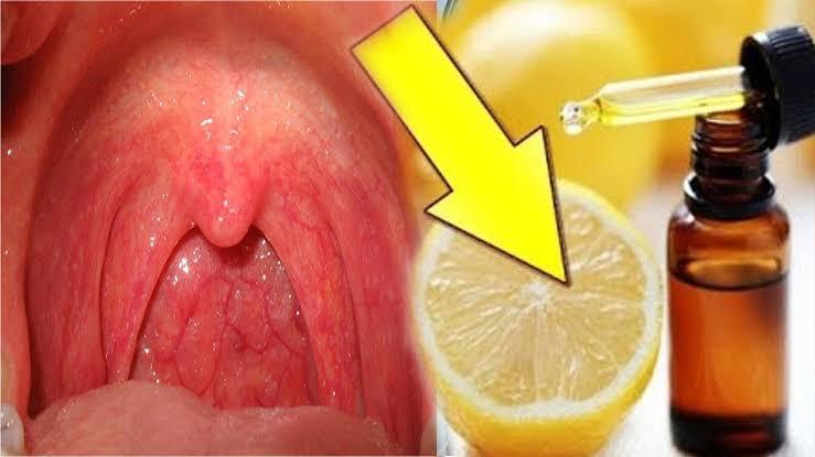 صورة علاج الحلق الملتهب , مضاد حيوى سريع المفعول هيضيع الالتهاب