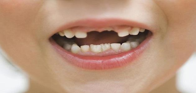 صورة ما اجمله من تفسير عكس ما يعتقده الانسان تماما , حلم الاسنان الاماميه